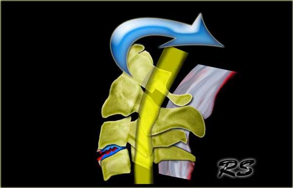 forum artroza tratamentului coloanei vertebrale cervicale