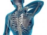 Osificarea heterotopica in leziunile maduvei spinarii