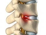 Fracturile vertebrale