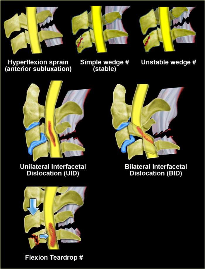 înghețați tratamentul articulațiilor mâinilor