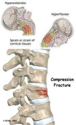 Inflamația articulațiilor intervertebrale