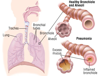 Pneumonia este o infectie bacteriana a plamanilor