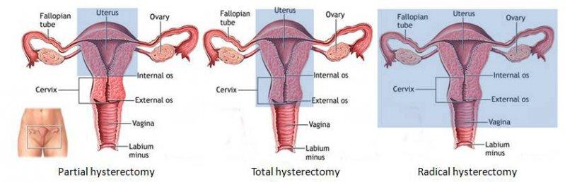 Ovarele functioneaza dupa menopauza