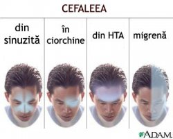 Cefalee. Mecanism fiziopatogenic