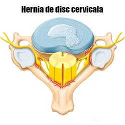 operatie hernie de disc pret