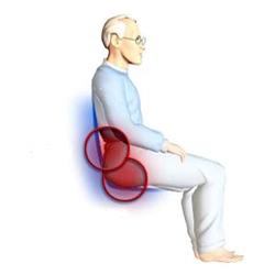 poziția ulcerului decubit sunt varice tari
