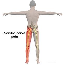 picioarele spatelui inferior și dureri de șold