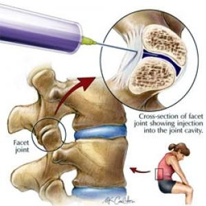 medic pentru tratamentul artrozei