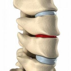 boli degenerative-distrofice ale articulațiilor și coloanei vertebrale)