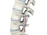 Fuziunea spinala